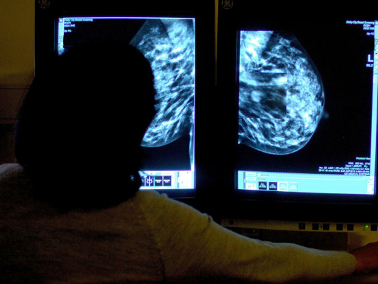 06_More than 400k_women don_t breast screen